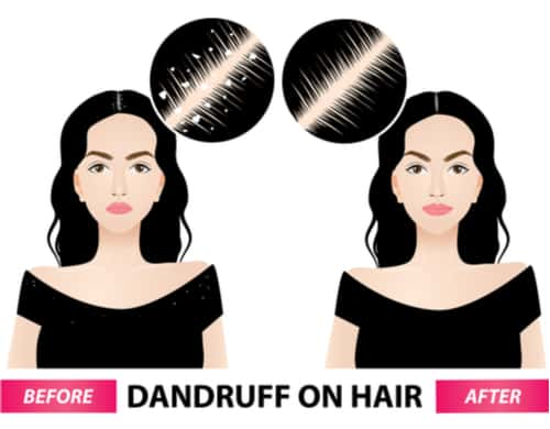 Best remedies for dandruff