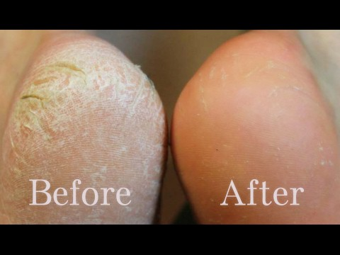 Home remedy to heal your cracked heels