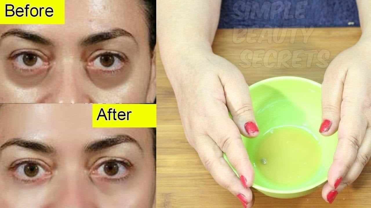 Get rid of dark circles naturally