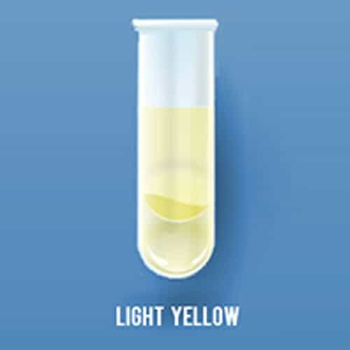 What does colors of urine tells about the health