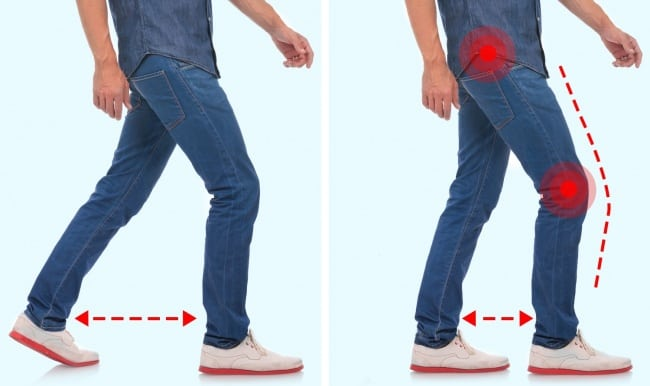 Your walking style can reveal your health problems